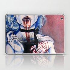 Frostbite  Laptop & iPad Skin