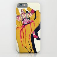 You botched it! You botched it! iPhone 6 Slim Case