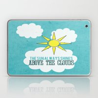 The Sun Always Shines Above The Clouds  Laptop & iPad Skin