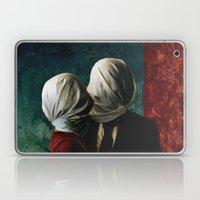 Les AMANTS Laptop & iPad Skin