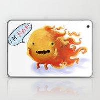 I'm HOT!!!! Laptop & iPad Skin