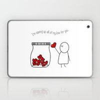 I'm Saving Up All My Love For You! Laptop & iPad Skin