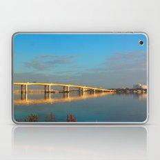Causeway Laptop & iPad Skin