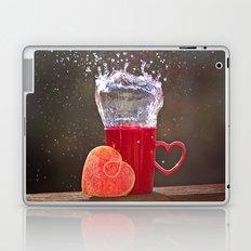 Splash Love Laptop & iPad Skin