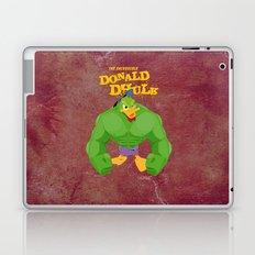coupling up (accouplés) Donald Dhulk Laptop & iPad Skin