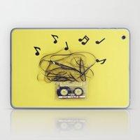 Mix Tape (ANALOG ZINE) Laptop & iPad Skin