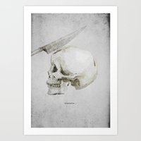Headache Art Print