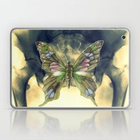 Experiment 5: Camouflage Laptop & iPad Skin