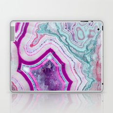 Cotton Candy Agate Slice Laptop & iPad Skin
