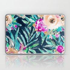 SO CASUAL  Laptop & iPad Skin