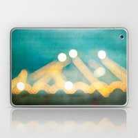 Circus Lights Laptop & iPad Skin
