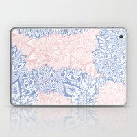 Modern Pink Rose Quartz … Laptop & iPad Skin