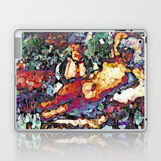 Follies Laptop & iPad Skin