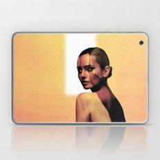 Zealot Laptop & iPad Skin