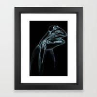 Puppet Check Up Framed Art Print