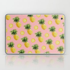 Pineapple and Pink III Laptop & iPad Skin