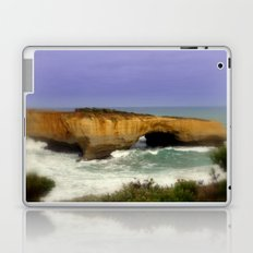 London Arch Laptop & iPad Skin