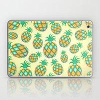 Pineapple Pastel Colors Pattern Laptop & iPad Skin
