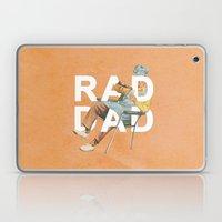 Rad Dad Laptop & iPad Skin
