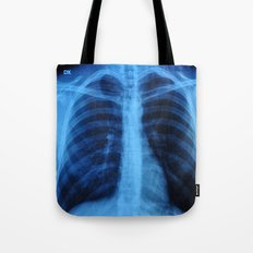 x ray medical radiography Tote Bag