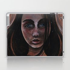 Freckles and Snow Laptop & iPad Skin
