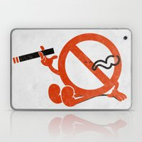 Smoke Break Laptop & iPad Skin