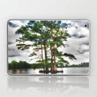 Living Strong Amidst The… Laptop & iPad Skin
