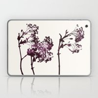 sugar maple 1 Laptop & iPad Skin