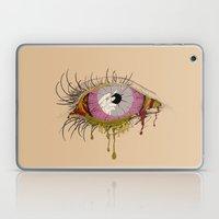 Sight of the Surgeon Laptop & iPad Skin