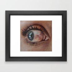 HYPERAEMIA Framed Art Print
