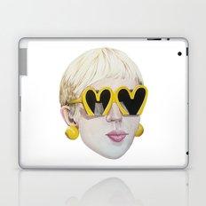 Moschino Laptop & iPad Skin