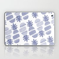 Pineapples (Light/Sliced… Laptop & iPad Skin