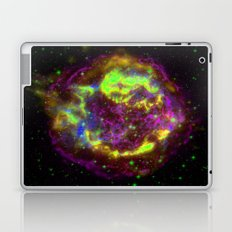 The Big Electron Laptop & iPad Skin