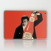 Vegetarian Vampire Laptop & iPad Skin