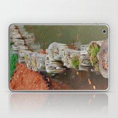Stumps Laptop & iPad Skin