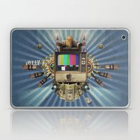 The  Television Will Not… Laptop & iPad Skin