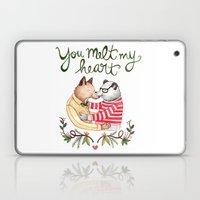 Melt My Heart Laptop & iPad Skin