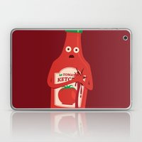 Fake Blood Laptop & iPad Skin
