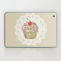 Girly Pink Cute Kawaii Cupcake Lace Stripe Pattern Laptop & iPad Skin