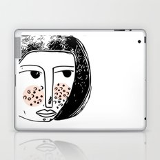 Pimply Monsters - 1 Laptop & iPad Skin