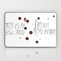 This Is My Blood! Laptop & iPad Skin
