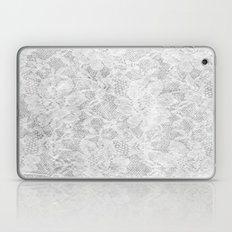White Lace Laptop & iPad Skin