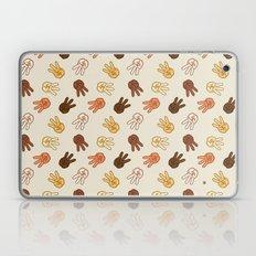 Hiii Power hand sign (remix)  Laptop & iPad Skin