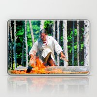 Feeding the Fire Laptop & iPad Skin