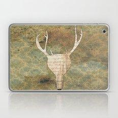 Brilliant Idear Laptop & iPad Skin