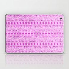 Lacey Lace - White Pink Laptop & iPad Skin