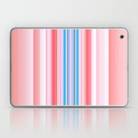 Yummy Stripes Laptop & iPad Skin