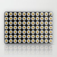 DAISIES DIRECT Laptop & iPad Skin