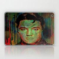 Elvis P. Laptop & iPad Skin