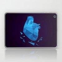 My Fractured Heart Laptop & iPad Skin